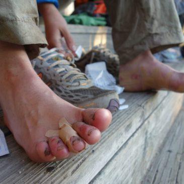kaputte Füße